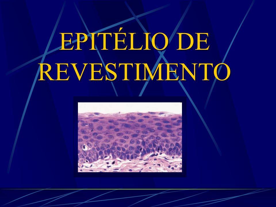 Epitélio de Revestimento Epitélio de Transição (bexiga) * Epitélio estratificado * Células superficiais grandes, globosas, com contornos arredondados e núcleos redondos * Faixa de citoplasma superficial mais corada