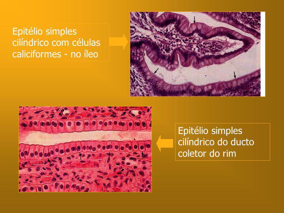 Epitélio simples cilíndrico do ducto coletor do rim Epitélio simples cilíndrico com células caliciformes - no íleo