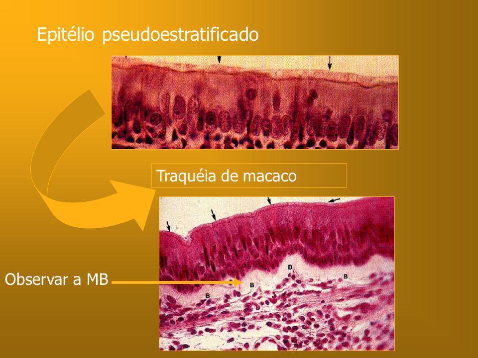 Epitélio pseudoestratificado Traquéia de macaco Observar a MB