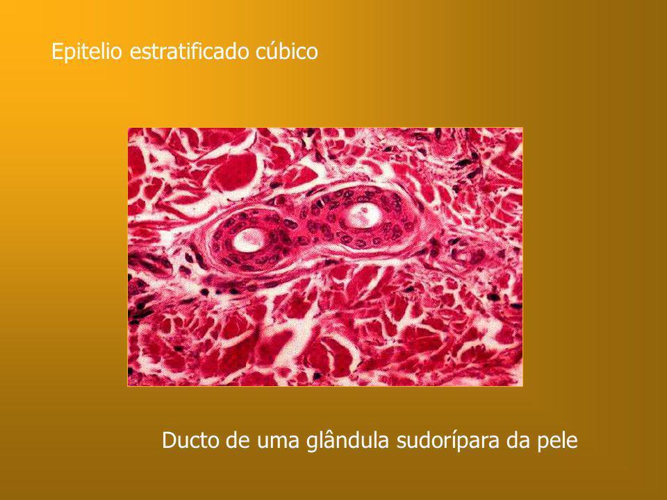 Epitelio estratificado cúbico Ducto de uma glândula sudorípara da pele