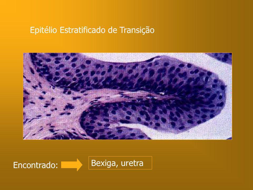 Epitélio Estratificado de Transição Encontrado: Bexiga, uretra