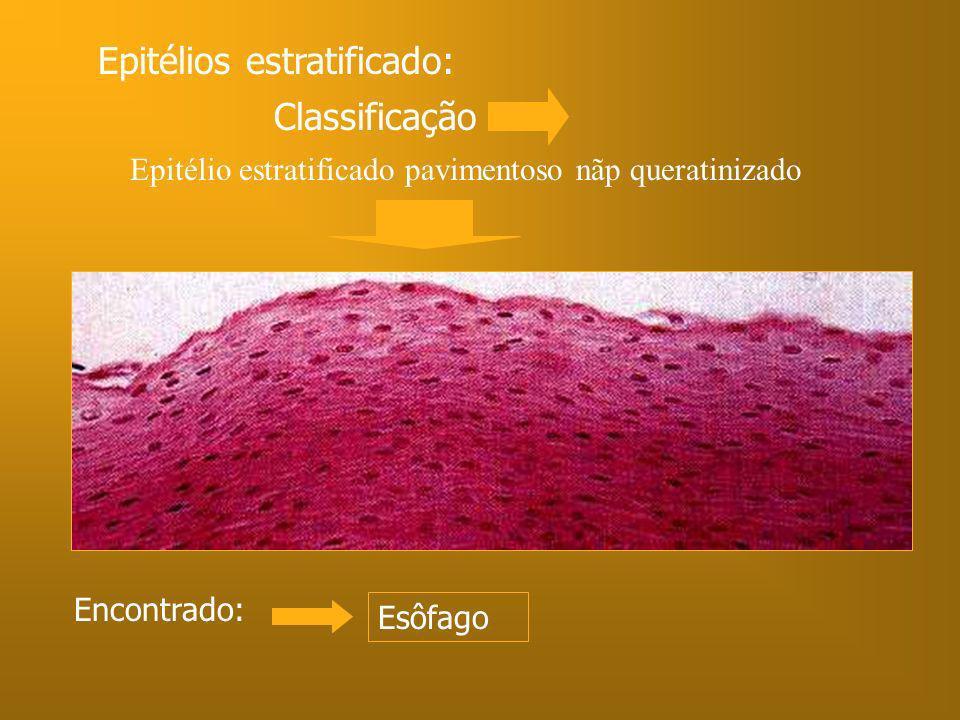 Epitélio estratificado pavimentoso nãp queratinizado Encontrado: Esôfago Epitélios estratificado: Classificação