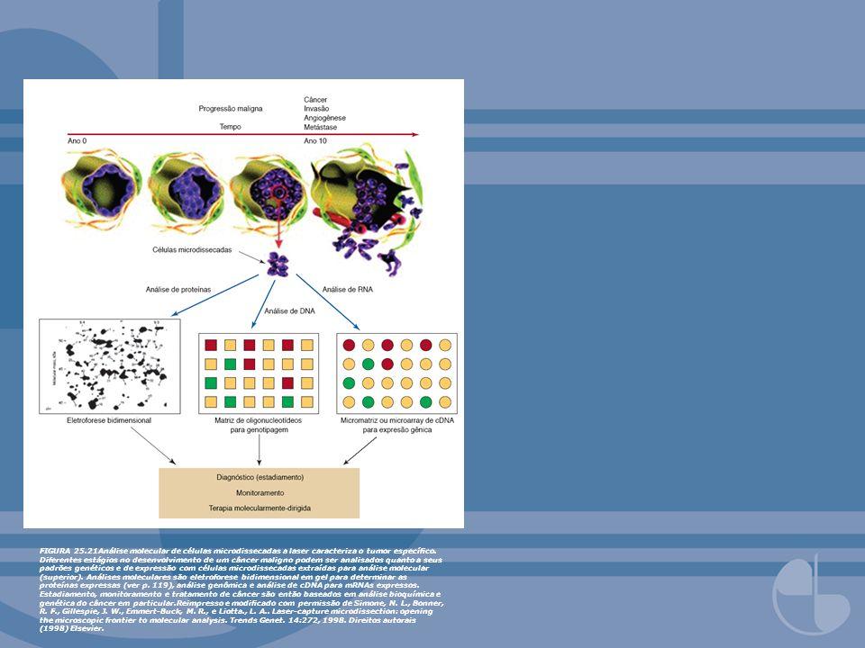 FIGURA 25.21Análise molecular de células microdissecadas a laser caracteriza o tumor especíco. Diferentes estágios no desenvolvimento de um câncer mal