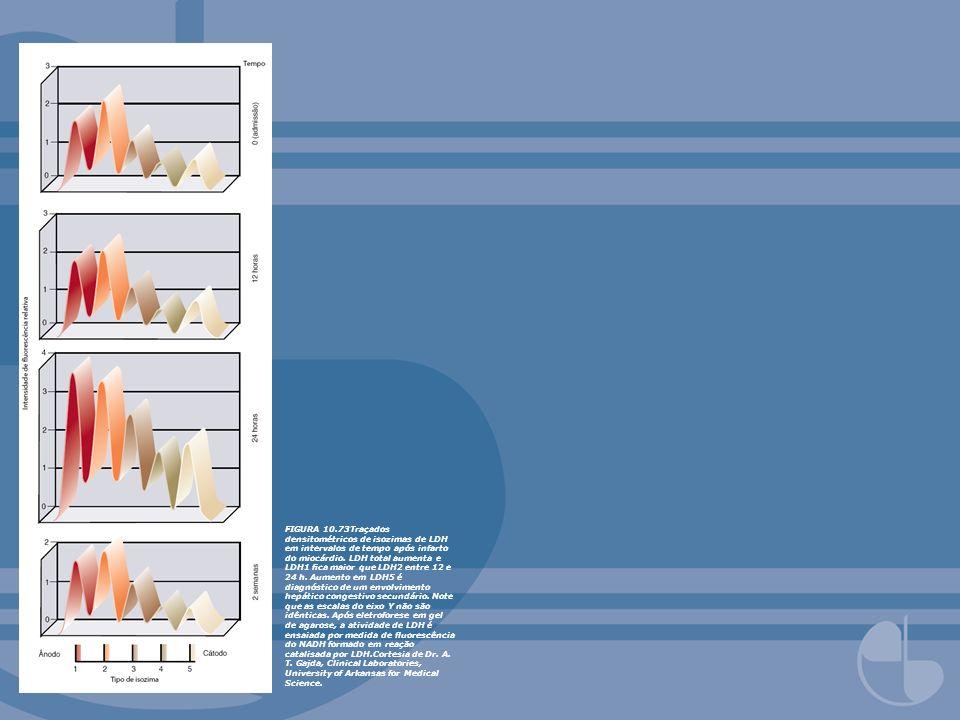 FIGURA 10.73Traçados densitométricos de isozimas de LDH em intervalos de tempo após infarto do miocárdio. LDH total aumenta e LDH1 ca maior que LDH2 e