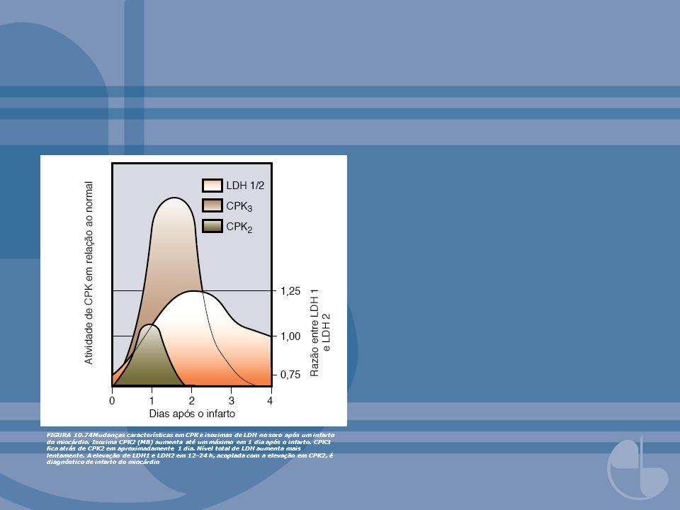 FIGURA 10.74Mudanças características em CPK e isozimas de LDH no soro após um infarto do miocárdio. Isozima CPK2 (MB) aumenta até um máximo em 1 dia a