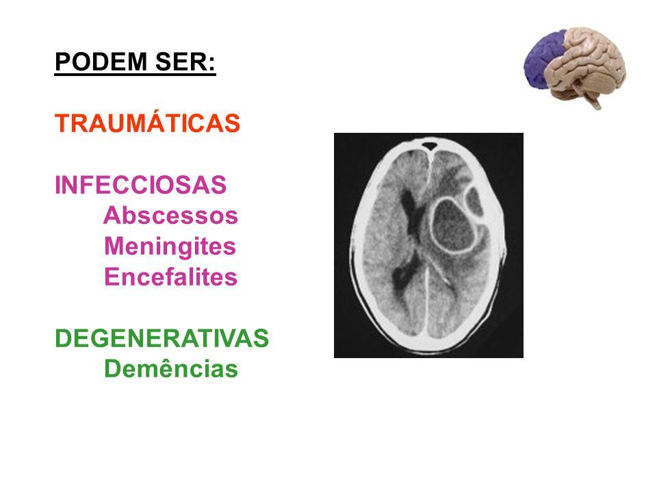 PODEM SER: TRAUMÁTICAS INFECCIOSAS Abscessos Meningites Encefalites DEGENERATIVAS Demências