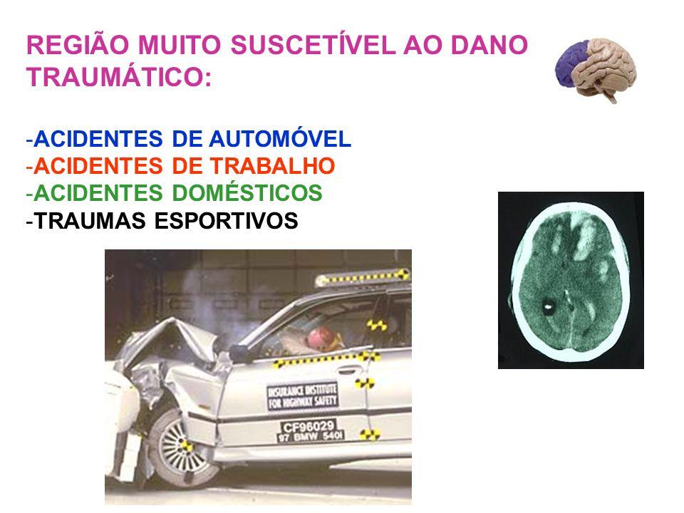 REGIÃO MUITO SUSCETÍVEL AO DANO TRAUMÁTICO: -ACIDENTES DE AUTOMÓVEL -ACIDENTES DE TRABALHO -ACIDENTES DOMÉSTICOS -TRAUMAS ESPORTIVOS