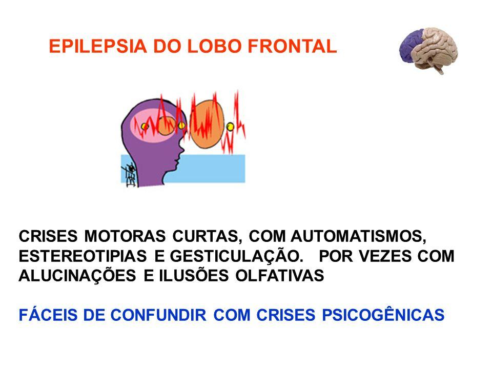 EPILEPSIA DO LOBO FRONTAL CRISES MOTORAS CURTAS, COM AUTOMATISMOS, ESTEREOTIPIAS E GESTICULAÇÃO. POR VEZES COM ALUCINAÇÕES E ILUSÕES OLFATIVAS FÁCEIS