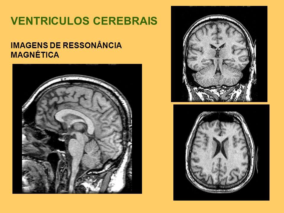 VENTRICULOS CEREBRAIS IMAGENS DE RESSONÂNCIA MAGNÉTICA