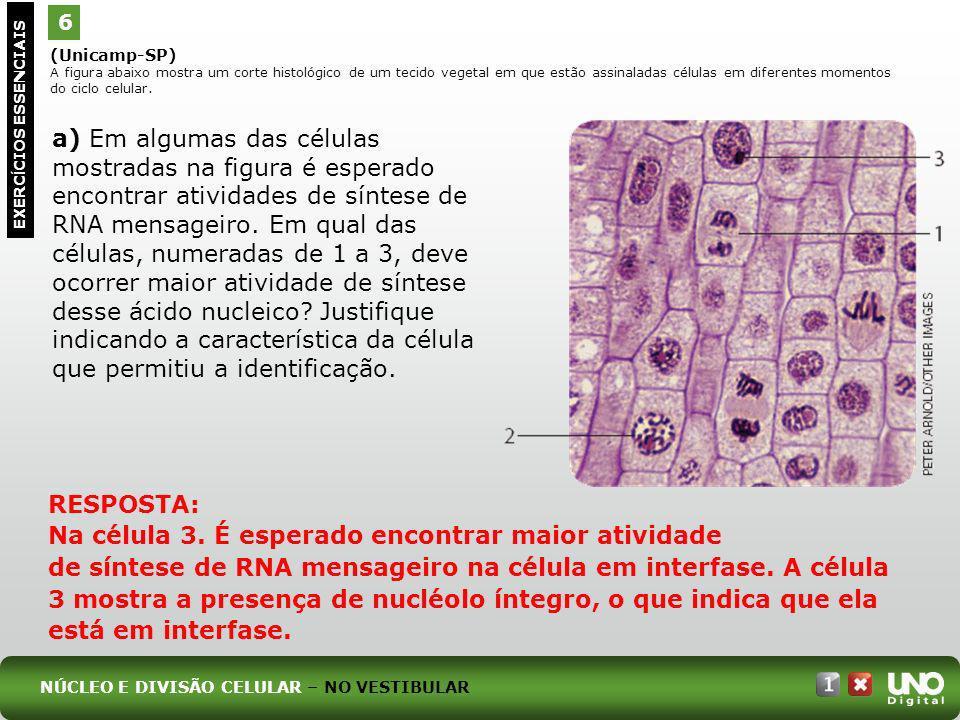 (Unicamp-SP) A figura abaixo mostra um corte histológico de um tecido vegetal em que estão assinaladas células em diferentes momentos do ciclo celular
