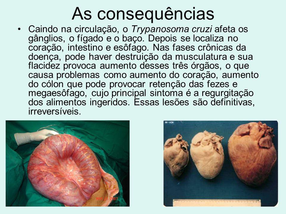 As consequências Caindo na circulação, o Trypanosoma cruzi afeta os gânglios, o fígado e o baço. Depois se localiza no coração, intestino e esôfago. N