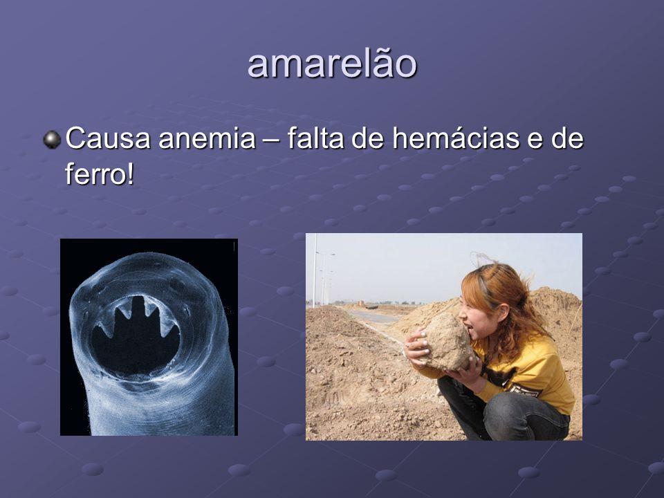 amarelão Causa anemia – falta de hemácias e de ferro!