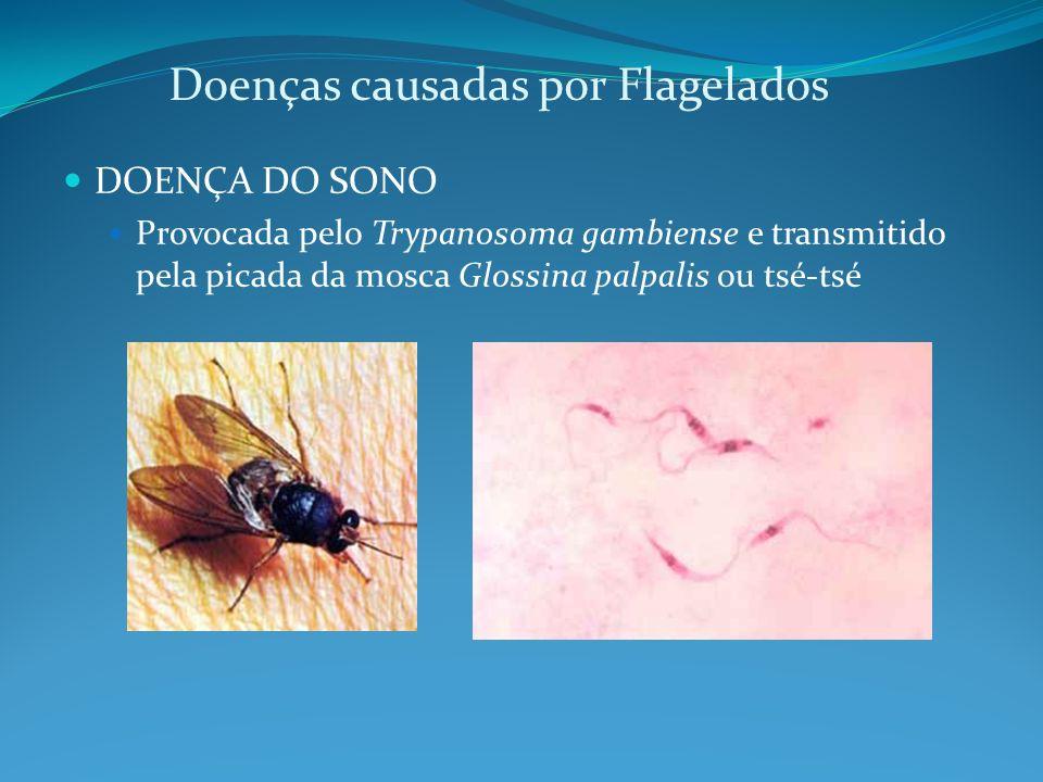 Doenças causadas por Flagelados DOENÇA DO SONO Provocada pelo Trypanosoma gambiense e transmitido pela picada da mosca Glossina palpalis ou tsé-tsé