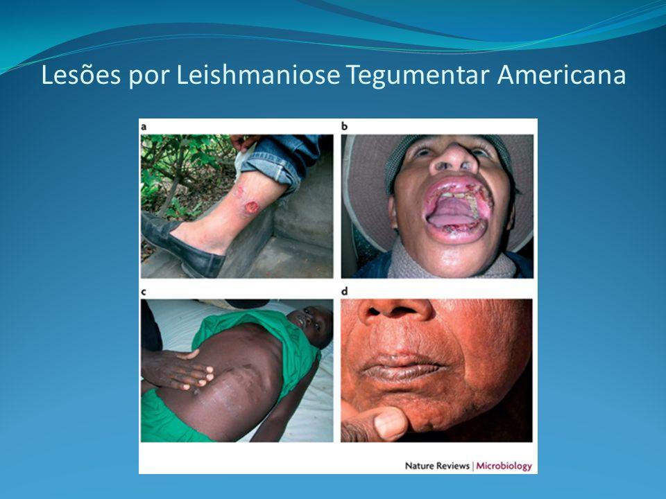 Lesões por Leishmaniose Tegumentar Americana