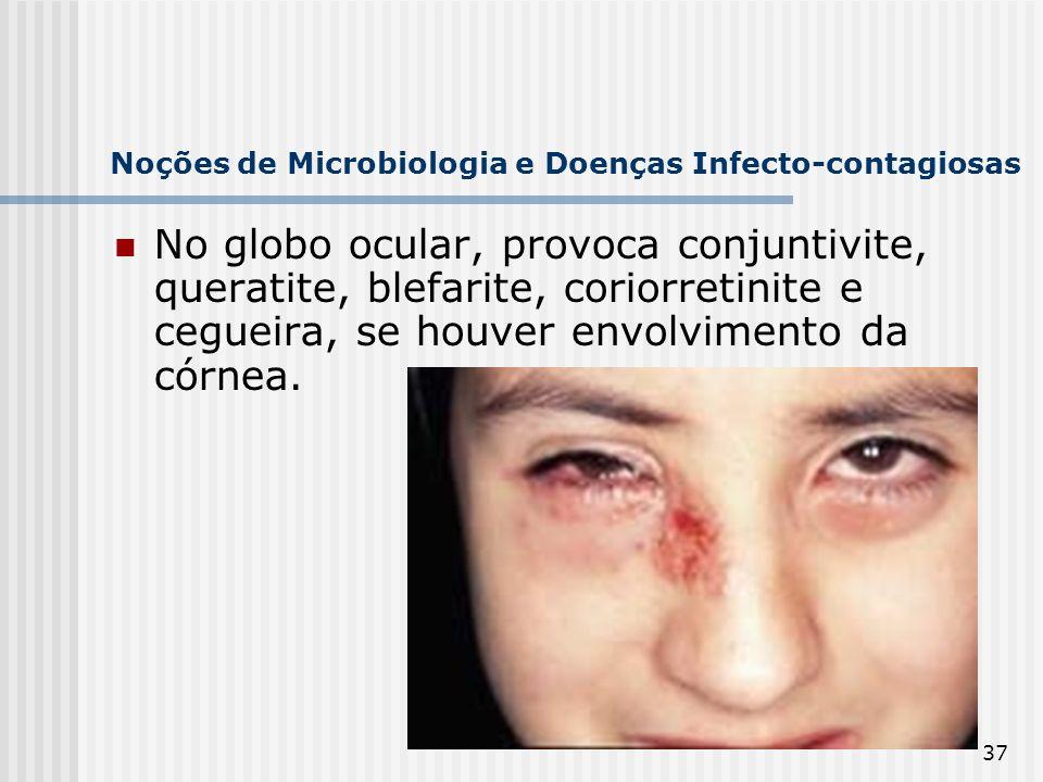 37 Noções de Microbiologia e Doenças Infecto-contagiosas No globo ocular, provoca conjuntivite, queratite, blefarite, coriorretinite e cegueira, se ho