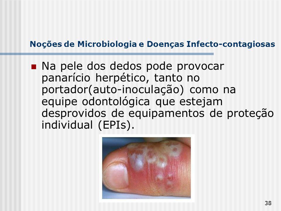 38 Noções de Microbiologia e Doenças Infecto-contagiosas Na pele dos dedos pode provocar panarício herpético, tanto no portador(auto-inoculação) como