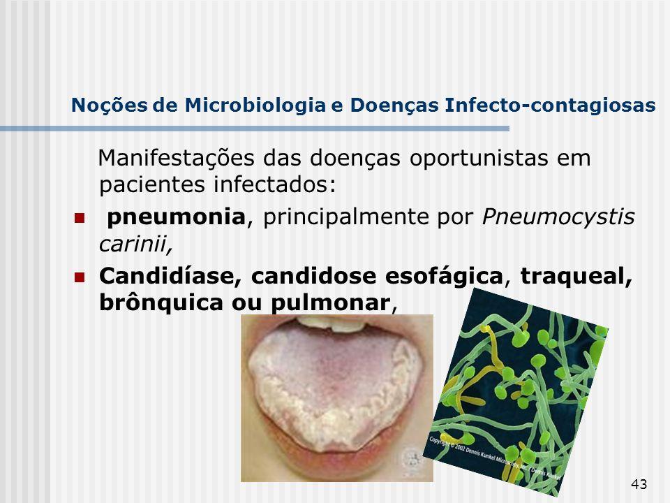 43 Noções de Microbiologia e Doenças Infecto-contagiosas Manifestações das doenças oportunistas em pacientes infectados: pneumonia, principalmente por