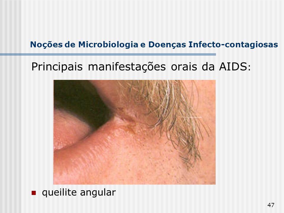 47 Noções de Microbiologia e Doenças Infecto-contagiosas Principais manifestações orais da AIDS : queilite angular