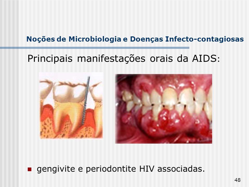 48 Noções de Microbiologia e Doenças Infecto-contagiosas Principais manifestações orais da AIDS : gengivite e periodontite HIV associadas.