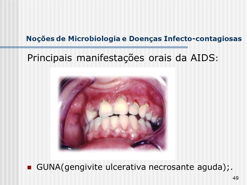 49 Noções de Microbiologia e Doenças Infecto-contagiosas Principais manifestações orais da AIDS : GUNA(gengivite ulcerativa necrosante aguda);.