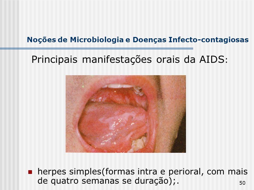 50 Noções de Microbiologia e Doenças Infecto-contagiosas Principais manifestações orais da AIDS : herpes simples(formas intra e perioral, com mais de