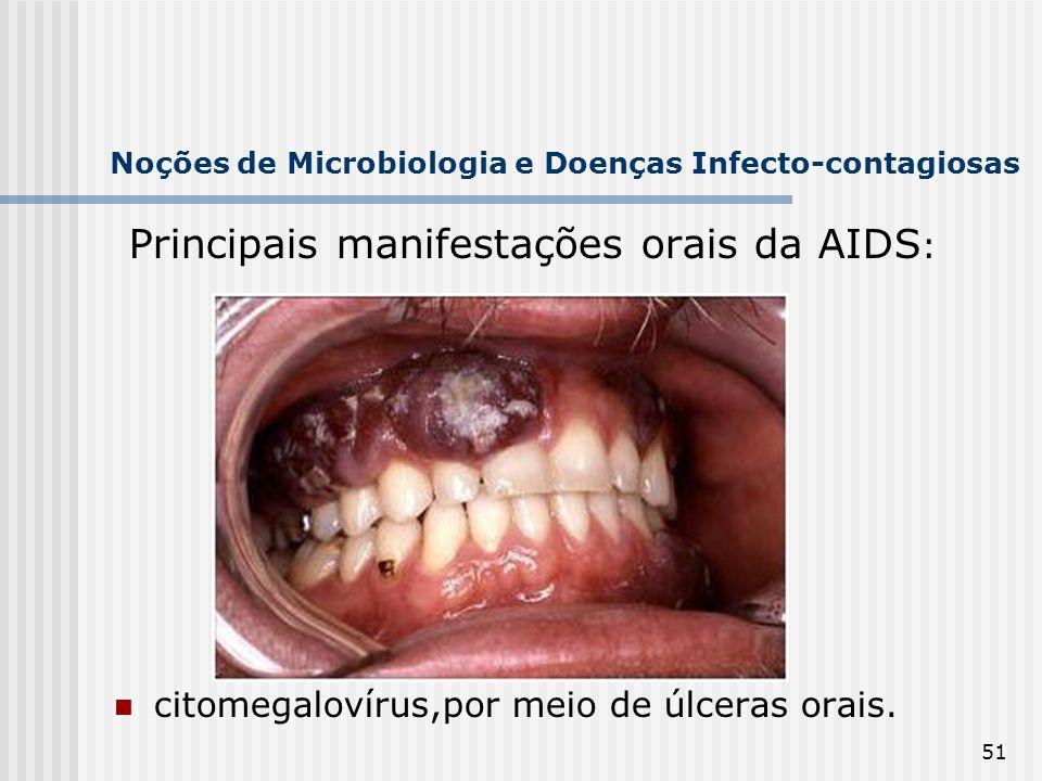 51 Noções de Microbiologia e Doenças Infecto-contagiosas Principais manifestações orais da AIDS : citomegalovírus,por meio de úlceras orais.