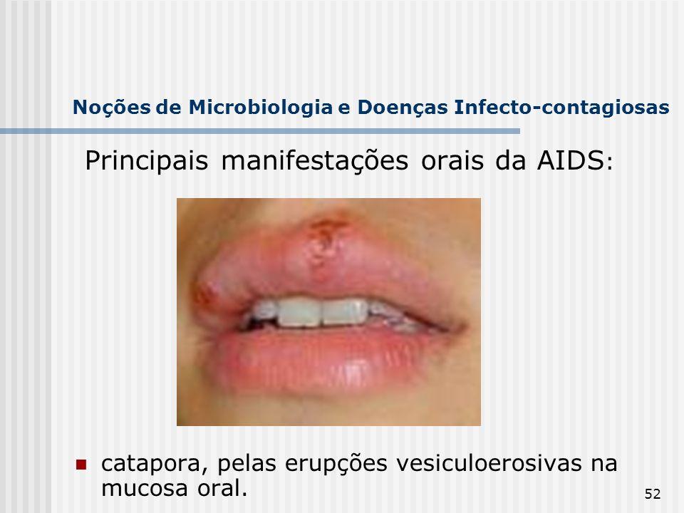 52 Noções de Microbiologia e Doenças Infecto-contagiosas Principais manifestações orais da AIDS : catapora, pelas erupções vesiculoerosivas na mucosa