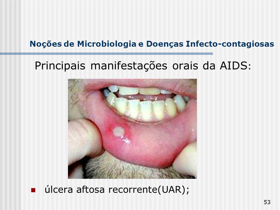 53 Noções de Microbiologia e Doenças Infecto-contagiosas Principais manifestações orais da AIDS : úlcera aftosa recorrente(UAR);