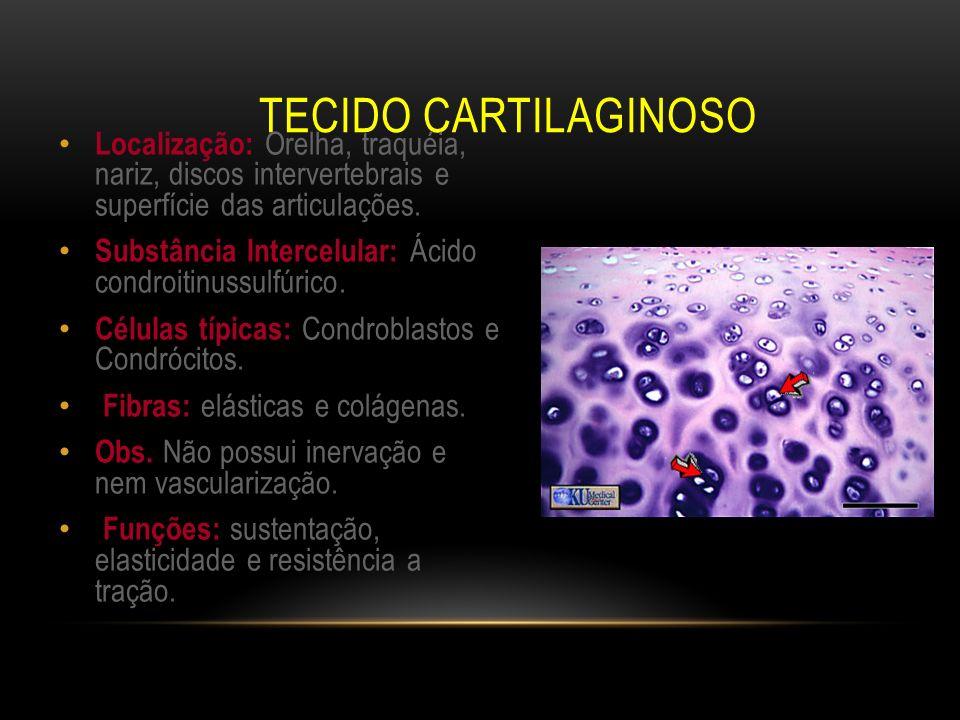 TECIDO CARTILAGINOSO Localização: Orelha, traquéia, nariz, discos intervertebrais e superfície das articulações. Substância Intercelular: Ácido condro