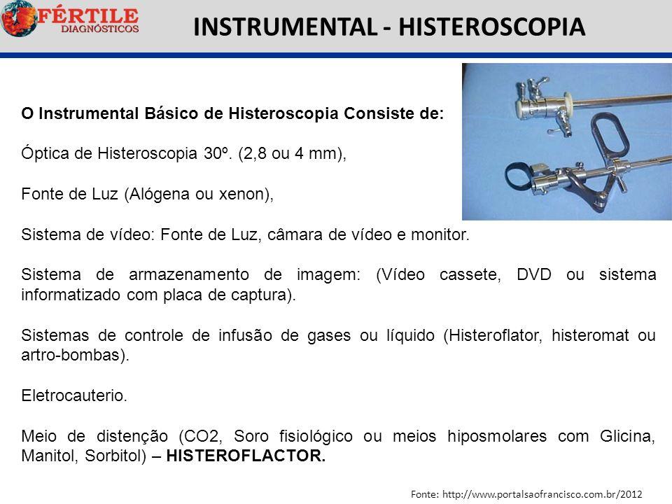 INSTRUMENTAL - HISTEROSCOPIA Fonte: http://www.portalsaofrancisco.com.br/2012 O Instrumental Básico de Histeroscopia Consiste de: Óptica de Histerosco