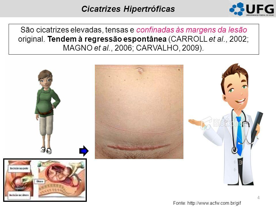 Cicatrizes Hipertróficas Fonte: http://www.acfw.com.br/gif São cicatrizes elevadas, tensas e confinadas às margens da lesão original. Tendem à regress