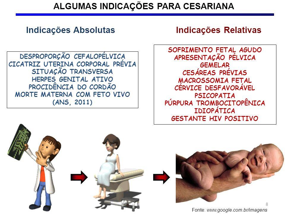 CESAREANA INCISÃO TRANSVERSAL São sucessivamente abertos o tecido subcutâneo e a aponeurose dos músculos reto abdominais, separados os músculos na linha média e abertos o peritônio parietal, o peritônio visceral e a parede uterina (NOMINATO et al., 2007).