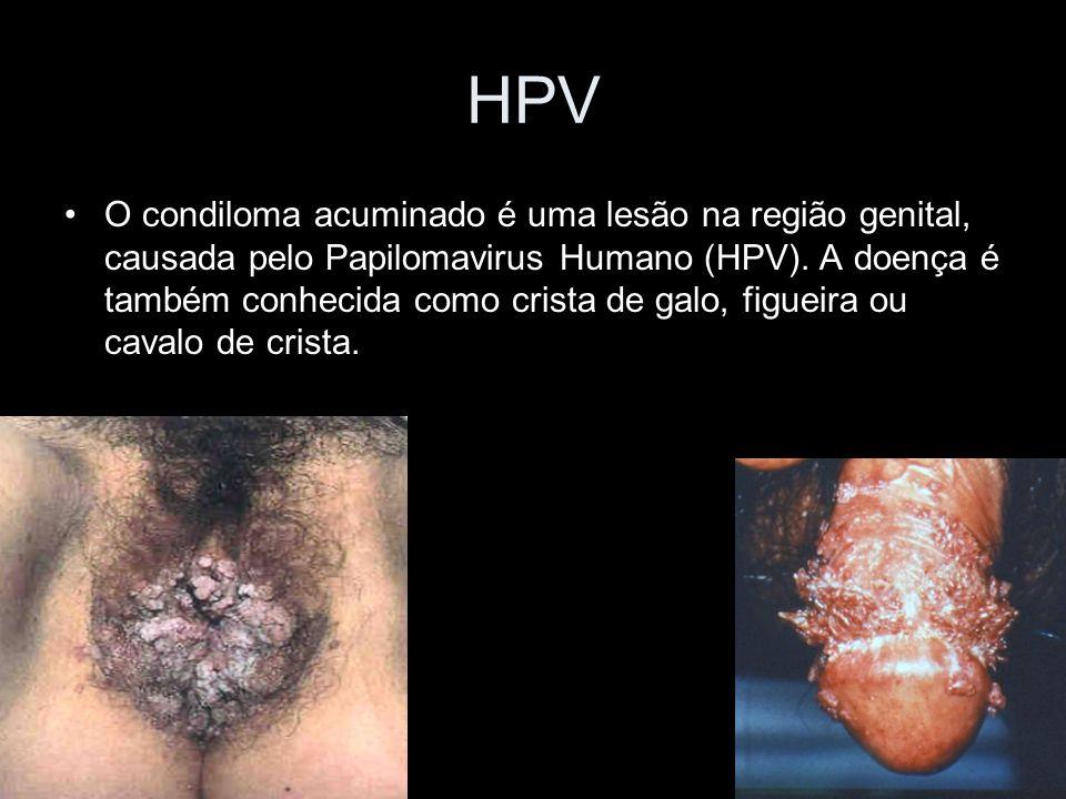 HPV O condiloma acuminado é uma lesão na região genital, causada pelo Papilomavirus Humano (HPV).