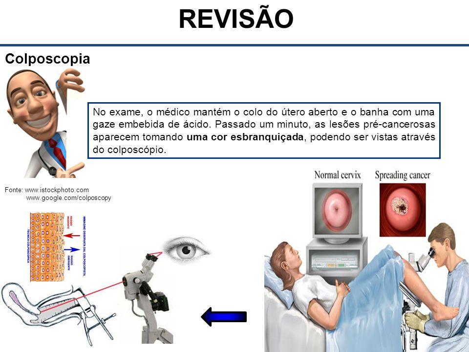 Fonte: www.istockphoto.com www.google.com/colposcopy REVISÃO Colposcopia No exame, o médico mantém o colo do útero aberto e o banha com uma gaze embebida de ácido.