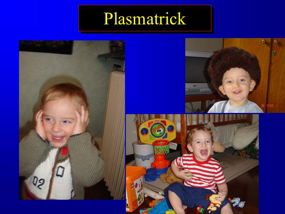 Plasmatrick