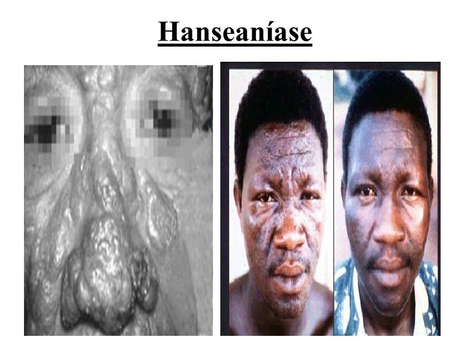 Hanseaníase
