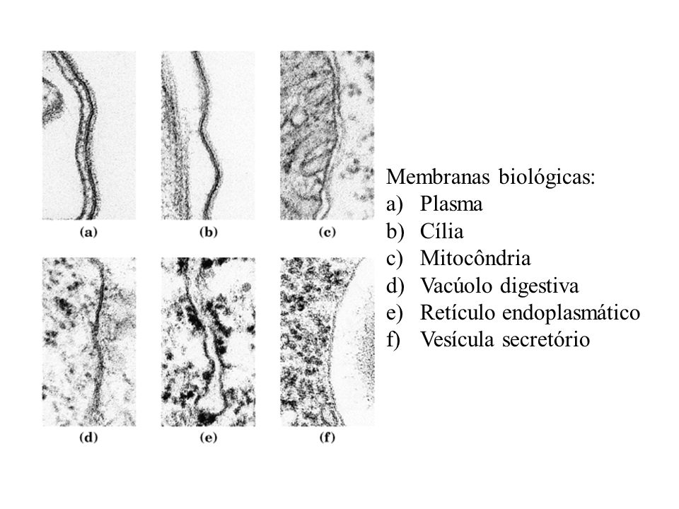 Membranas biológicas: a)Plasma b)Cília c)Mitocôndria d)Vacúolo digestiva e)Retículo endoplasmático f)Vesícula secretório