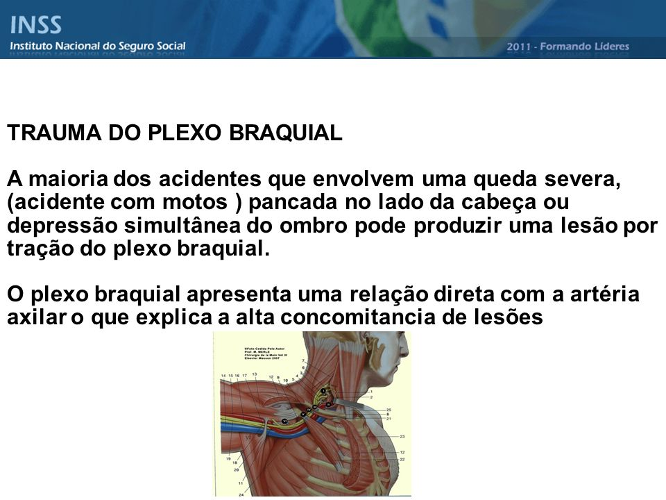 TRAUMA DO PLEXO BRAQUIAL A maioria dos acidentes que envolvem uma queda severa, (acidente com motos ) pancada no lado da cabeça ou depressão simultâne