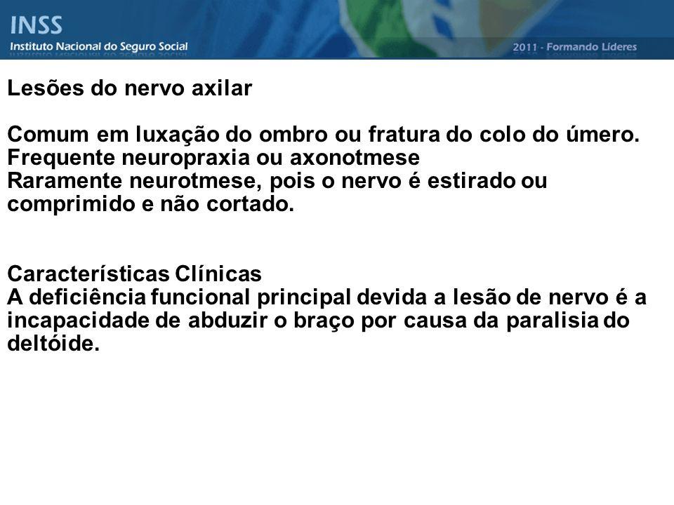 Lesões do nervo axilar Comum em luxação do ombro ou fratura do colo do úmero. Frequente neuropraxia ou axonotmese Raramente neurotmese, pois o nervo é