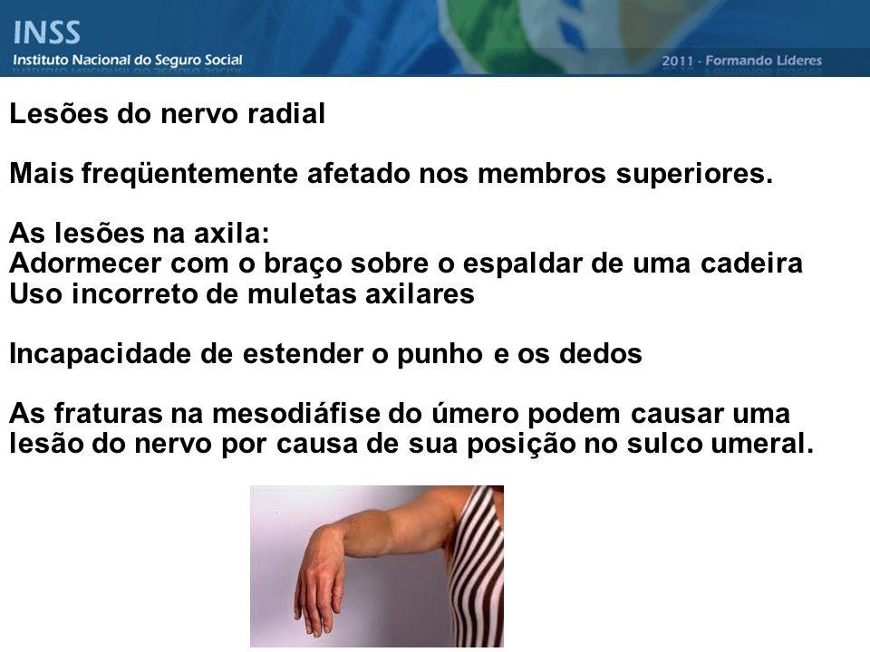 Lesões do nervo radial Mais freqüentemente afetado nos membros superiores. As lesões na axila: Adormecer com o braço sobre o espaldar de uma cadeira U