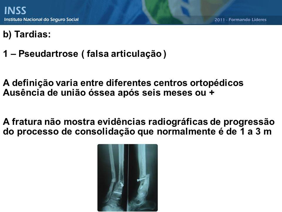 b) Tardias: 1 – Pseudartrose ( falsa articulação ) A definição varia entre diferentes centros ortopédicos Ausência de união óssea após seis meses ou +