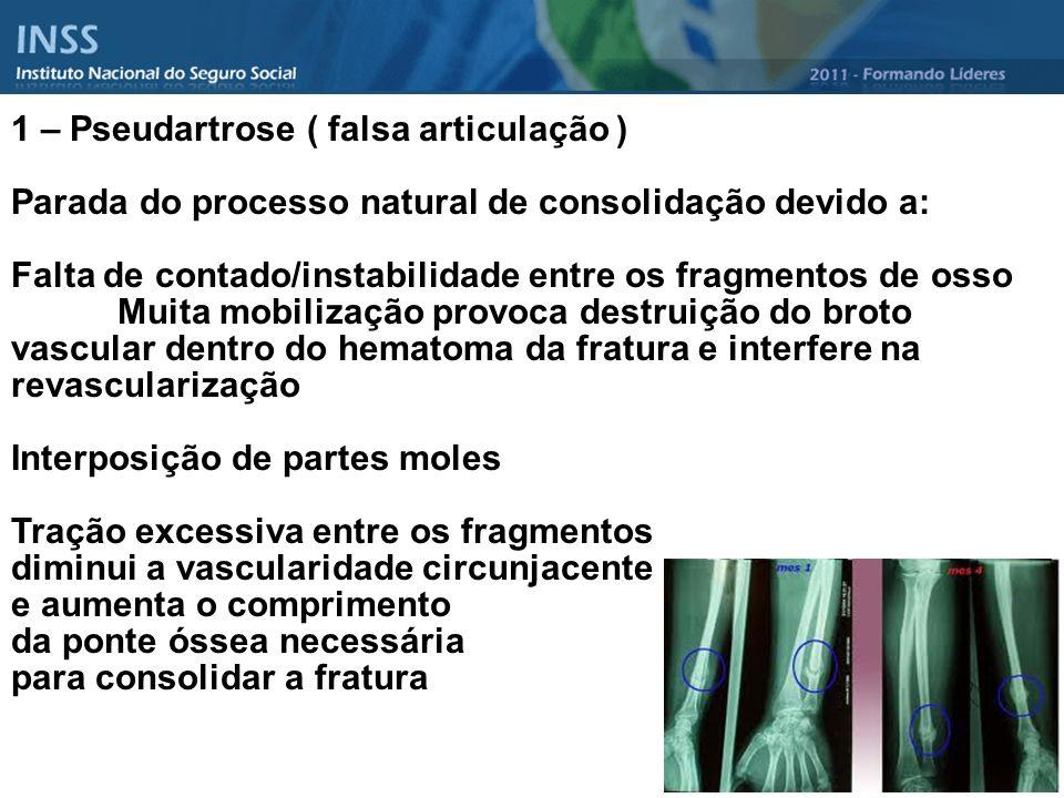 1 – Pseudartrose ( falsa articulação ) Parada do processo natural de consolidação devido a: Falta de contado/instabilidade entre os fragmentos de osso