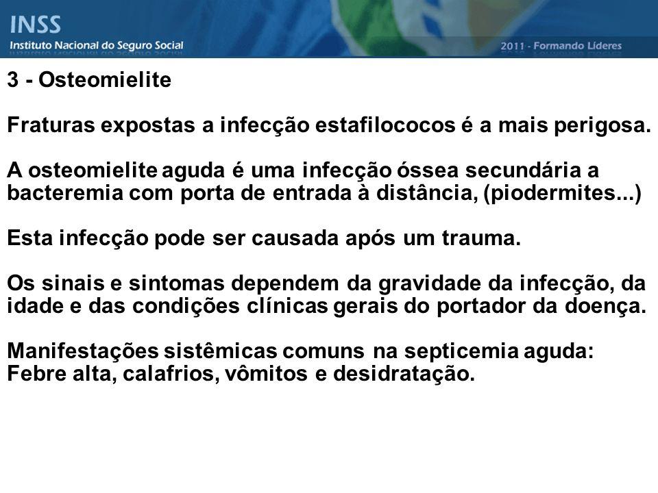 3 - Osteomielite Fraturas expostas a infecção estafilococos é a mais perigosa. A osteomielite aguda é uma infecção óssea secundária a bacteremia com p