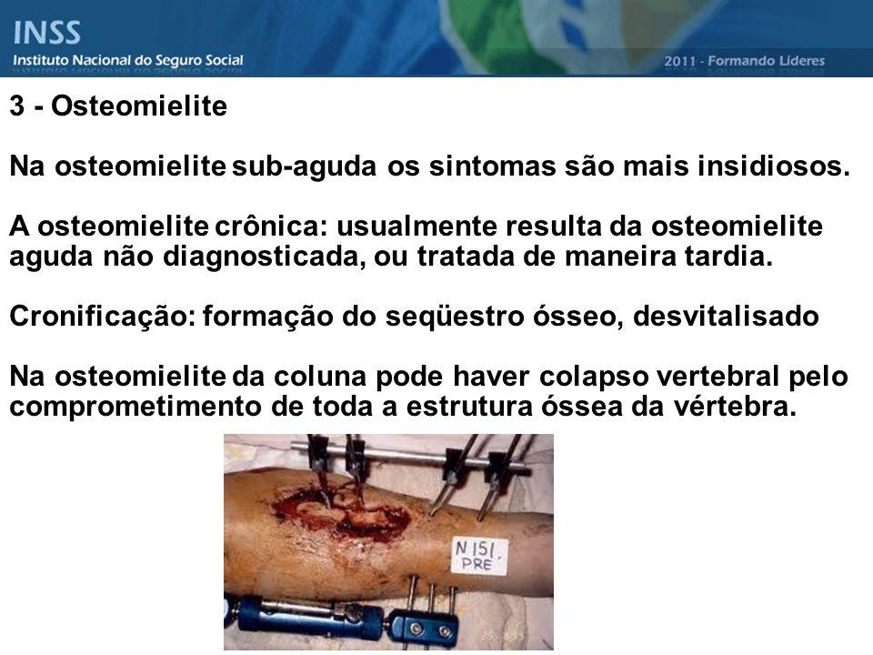 3 - Osteomielite Na osteomielite sub-aguda os sintomas são mais insidiosos. A osteomielite crônica: usualmente resulta da osteomielite aguda não diagn