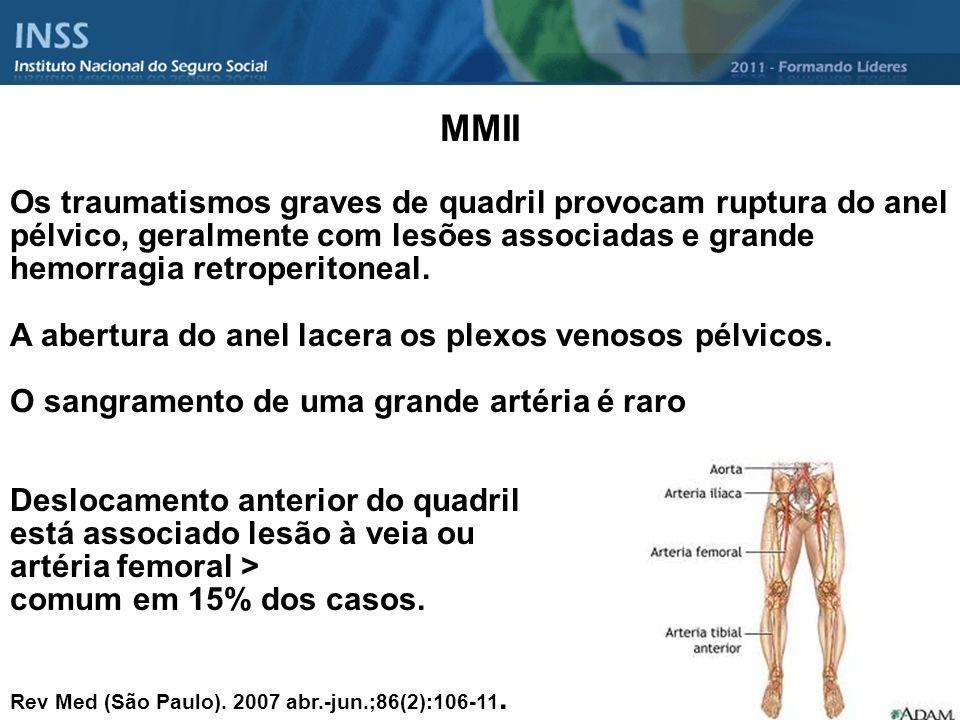 MMII Os traumatismos graves de quadril provocam ruptura do anel pélvico, geralmente com lesões associadas e grande hemorragia retroperitoneal. A abert