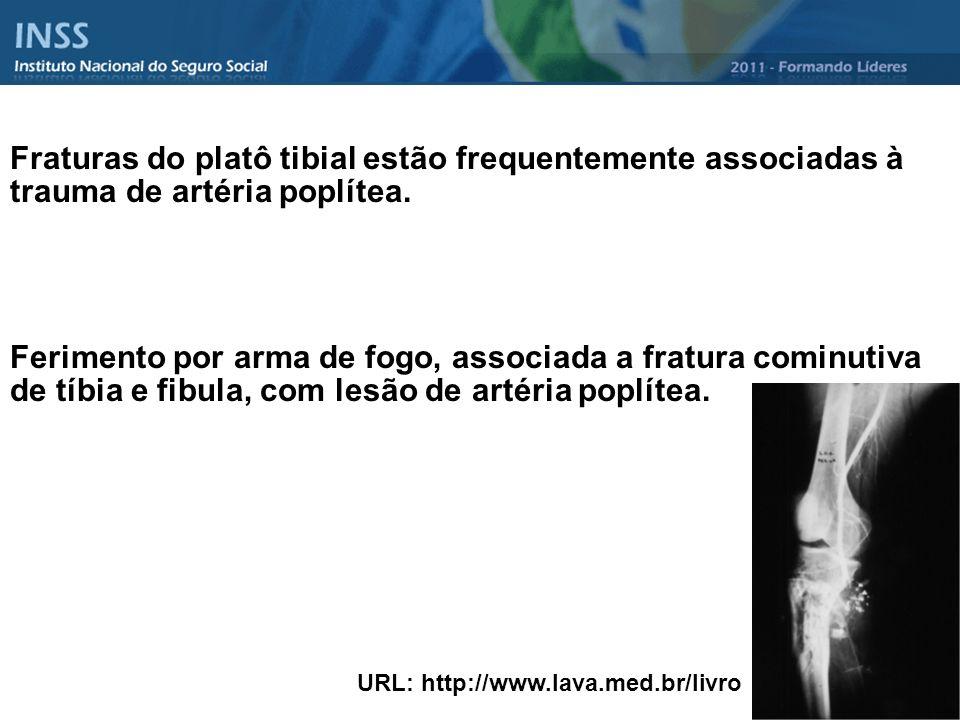 Fraturas do platô tibial estão frequentemente associadas à trauma de artéria poplítea. Ferimento por arma de fogo, associada a fratura cominutiva de t
