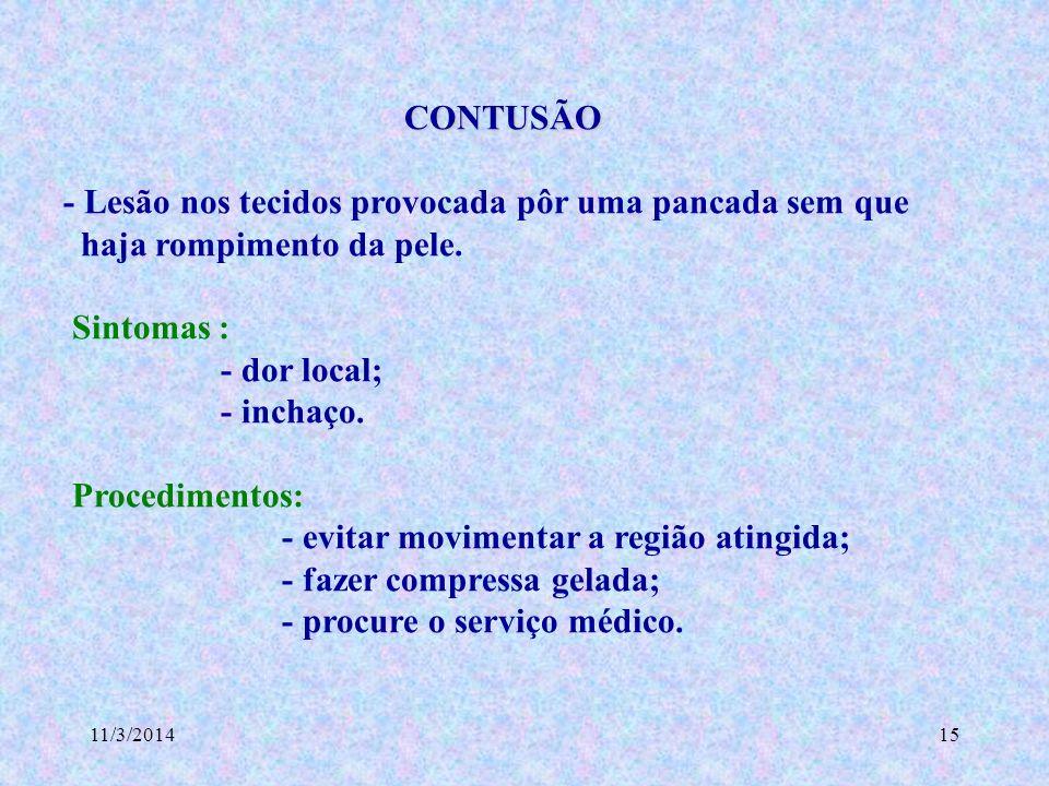 11/3/201415 CONTUSÃO CONTUSÃO - Lesão nos tecidos provocada pôr uma pancada sem que haja rompimento da pele. Sintomas : - dor local; - inchaço. Proced