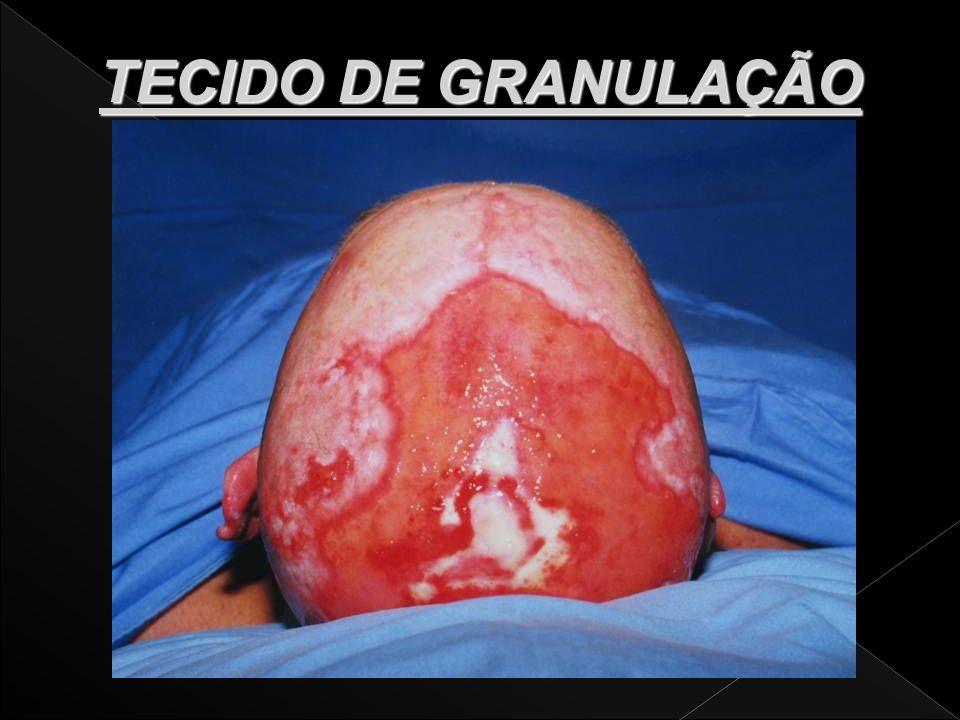 Escarotomia