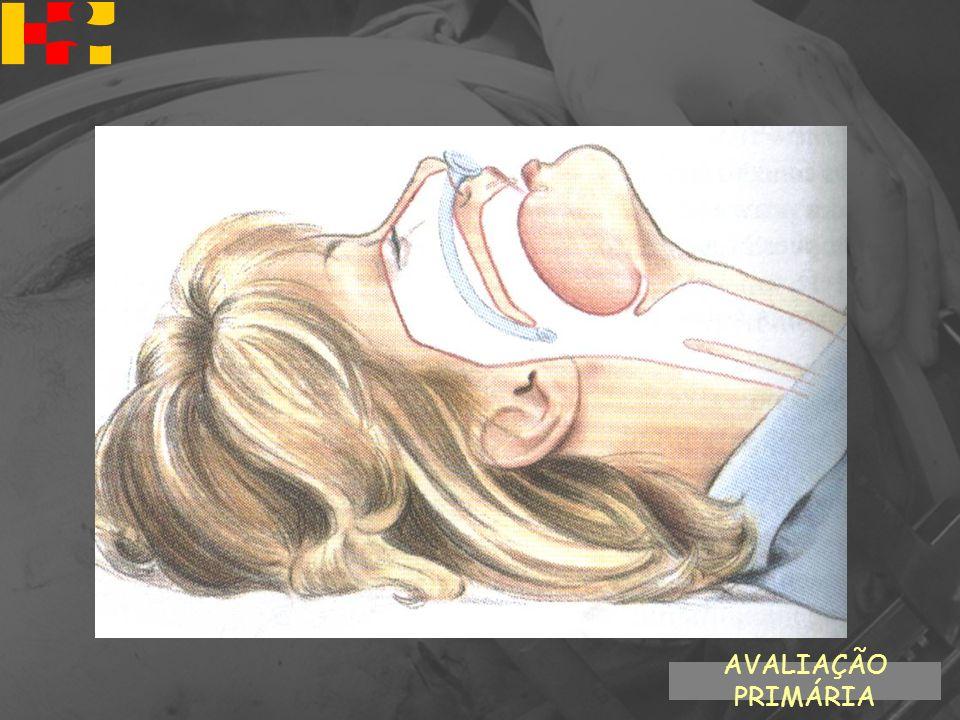 Via aérea definitiva –Inconsciência –Fratura maxilo-facial grave –Risco de aspiração –Risco de obstrução –Apnéia –Movimentos respiratórios inadequados –TCE grave (GCS 8) AVALIAÇÃO PRIMÁRIA A - Via Aérea com controle cervical