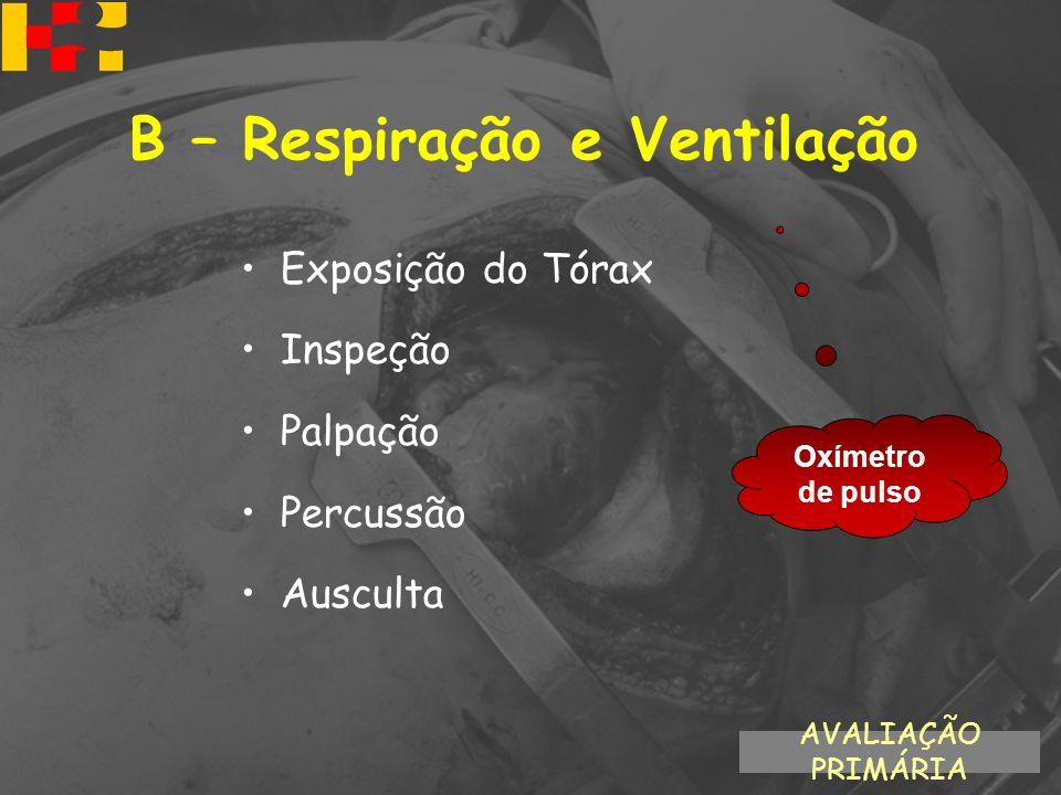 Exposição do Tórax Inspeção Palpação Percussão Ausculta AVALIAÇÃO PRIMÁRIA B – Respiração e Ventilação Oxímetro de pulso